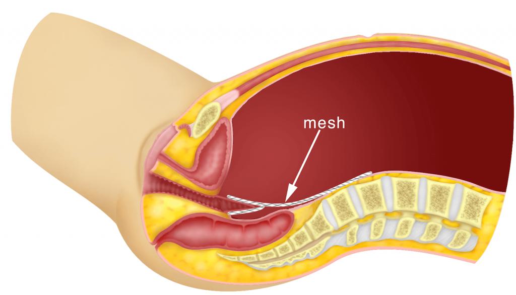 Abdominal sacrocolpopexy vs vaginal sacrospinous ligament fixation for vaginal vault prolapses